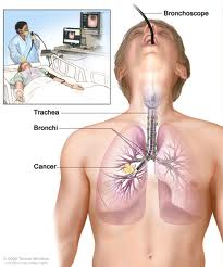Lung Cancer Surgery India, Low Cost Lung Cancer Treatment India, Lung Cancer Surgery Benefits India