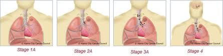 lung cancer treatment India, low cost lung cancer treatment India, lung cancer treatment benefits India